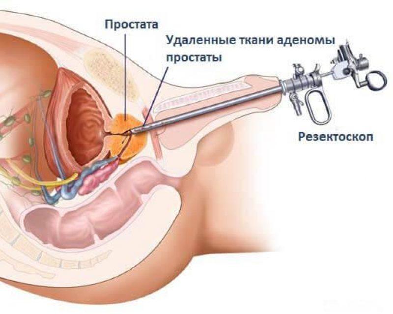 Цена операции на простате в москве