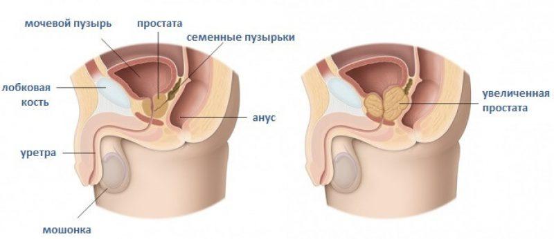 Простатит является причиной преждевременной эякуляцией