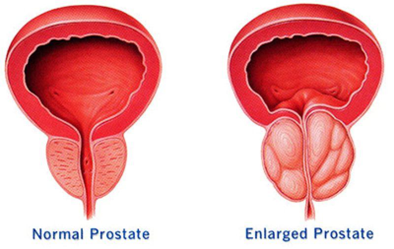 treatment enlarged prostate nice