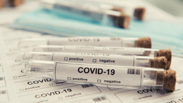 Covid Test Vials 3_31