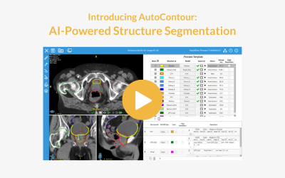 Introducing AutoContour: AI-Powered Structure Segmentation