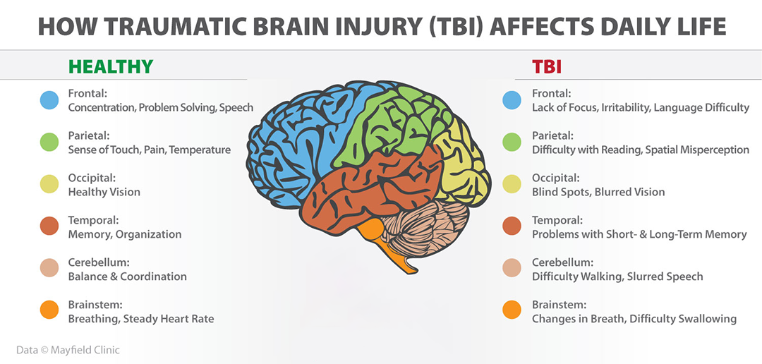 Brain Trauma Scientists Turn Their >> Traumatic Brain Injuries Rue Ziffra