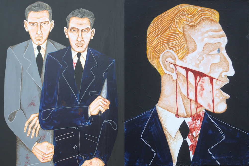 Left: The Krays – Right: Member of a Rival Firm with a Razor Slash