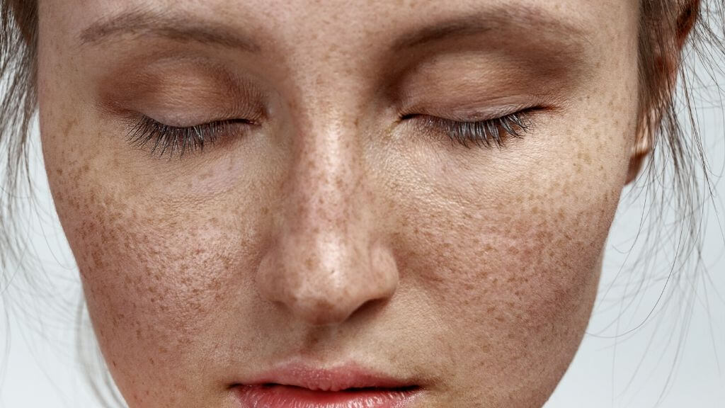 A woman with freckles.