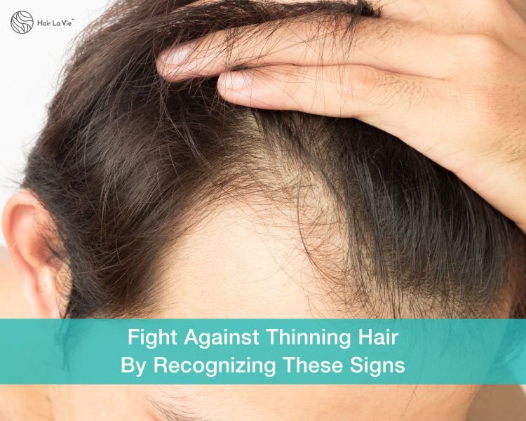 Stopping It Before It Starts 5 Signs Of Hair Loss And Thinning