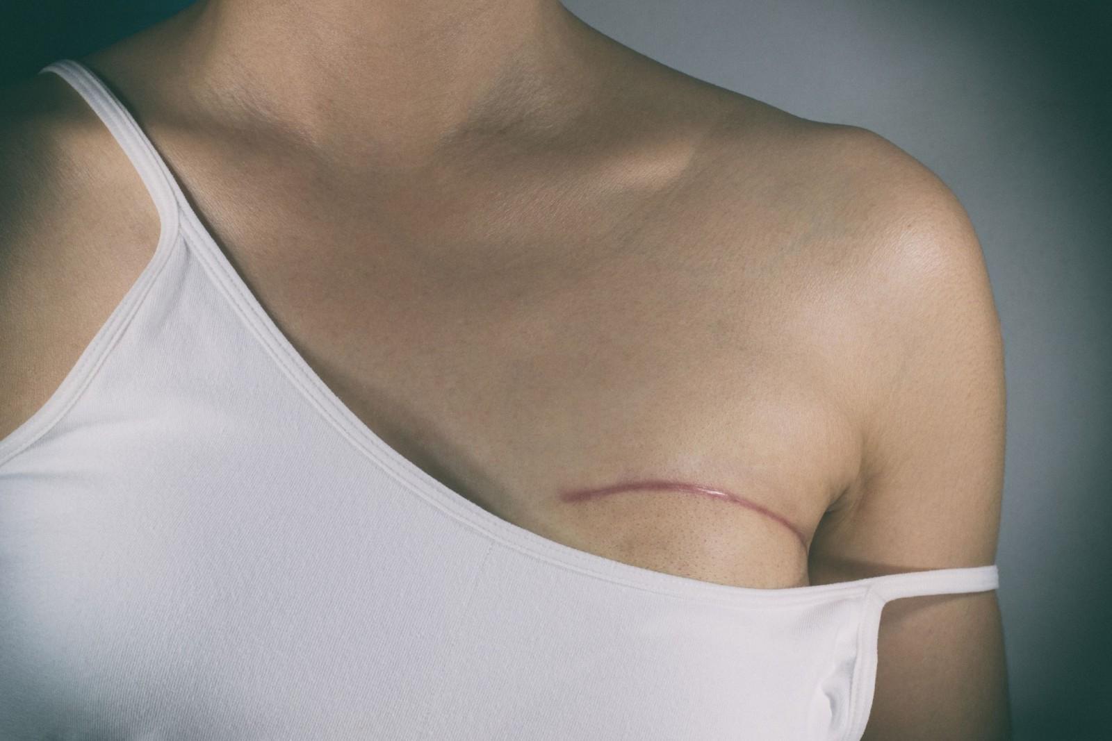 ما هي مضاعفات عملية استصال الثدي؟