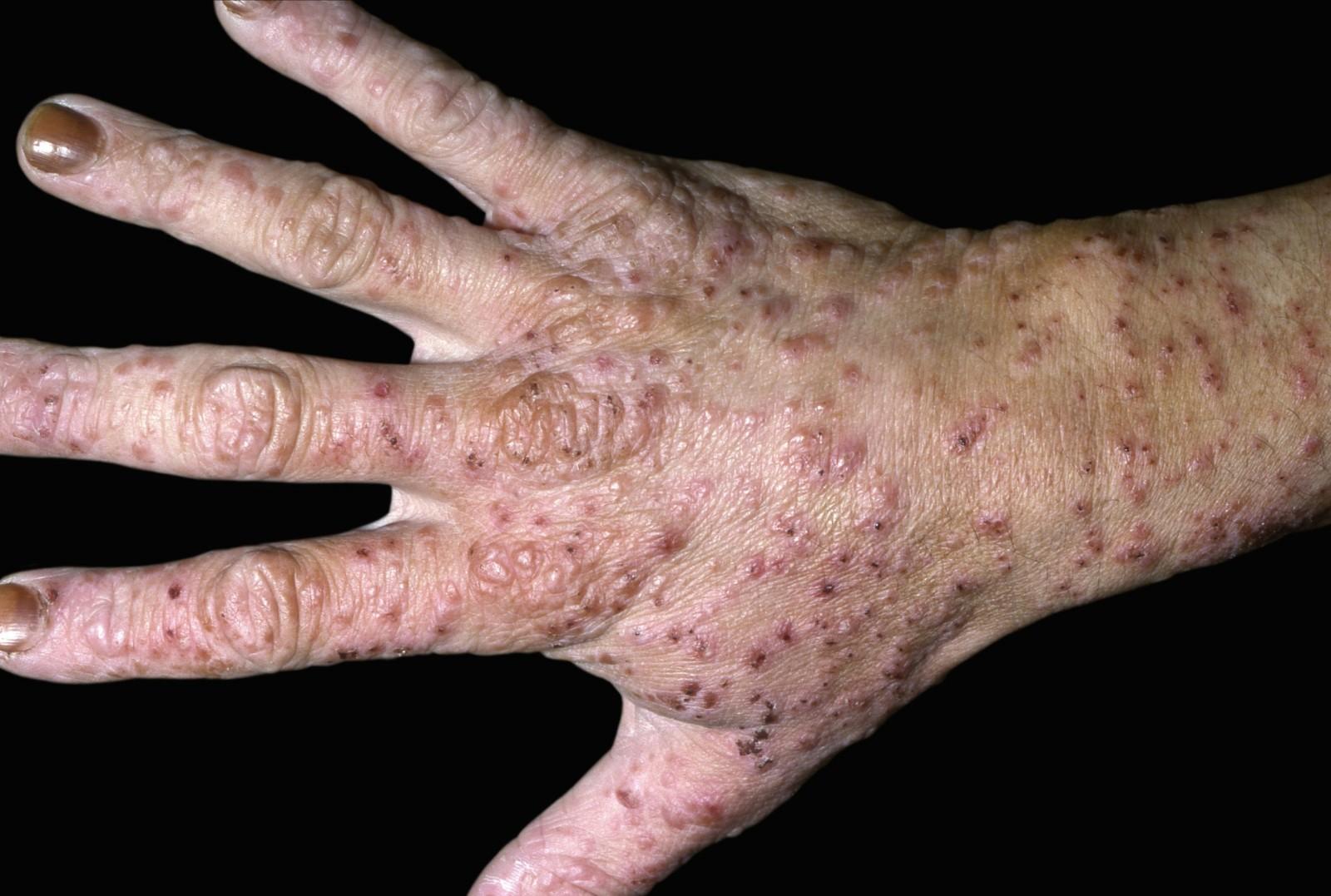 متى تطلب المشورة الطبية التهاب الجلد التأنبى