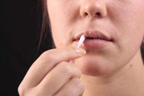 ما الذي يسبب شلل الوجه النصفي؟
