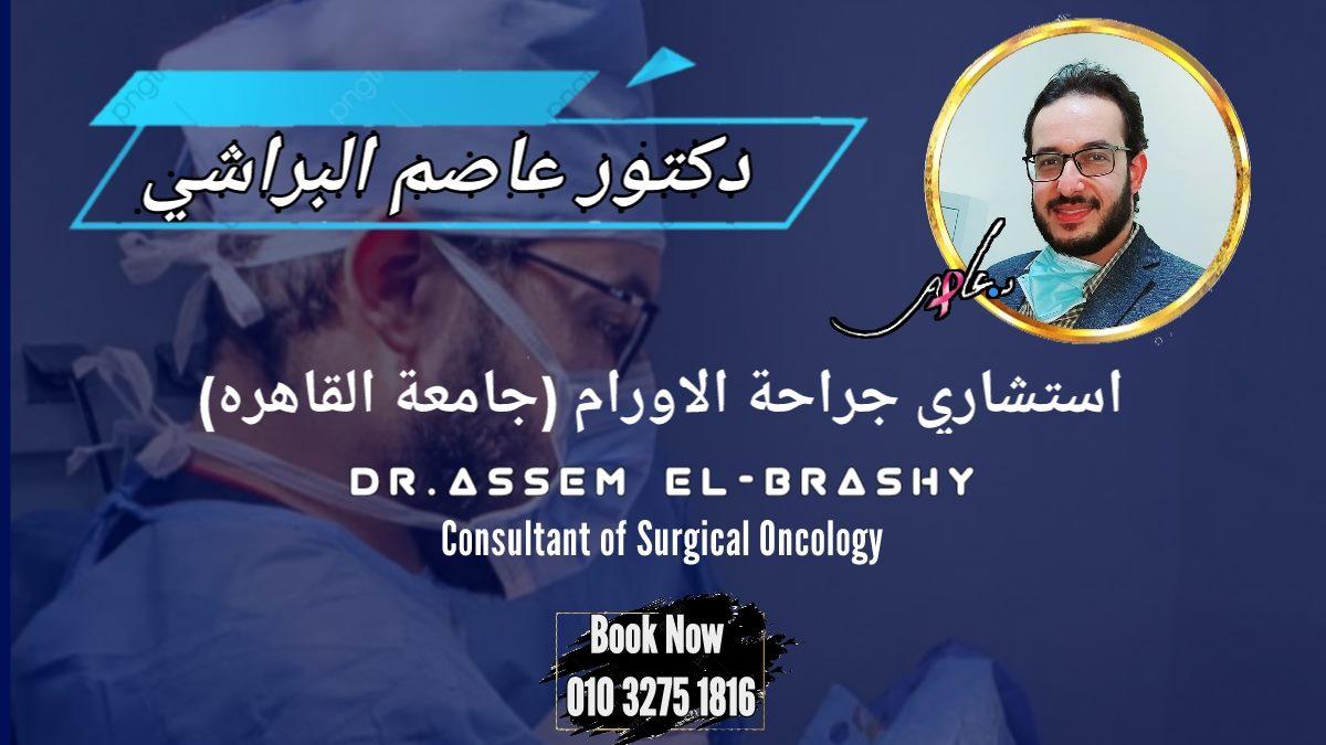 قائمة أفضل أطباء جراحة أورام