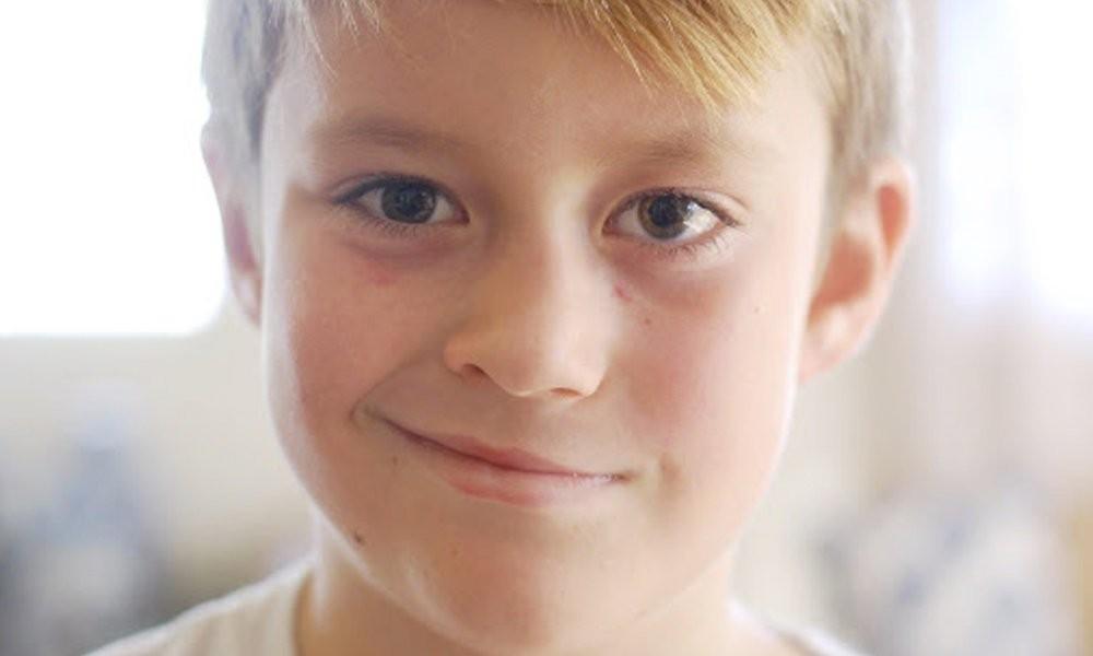 ما هي أعراض شلل الوجه النصفي؟
