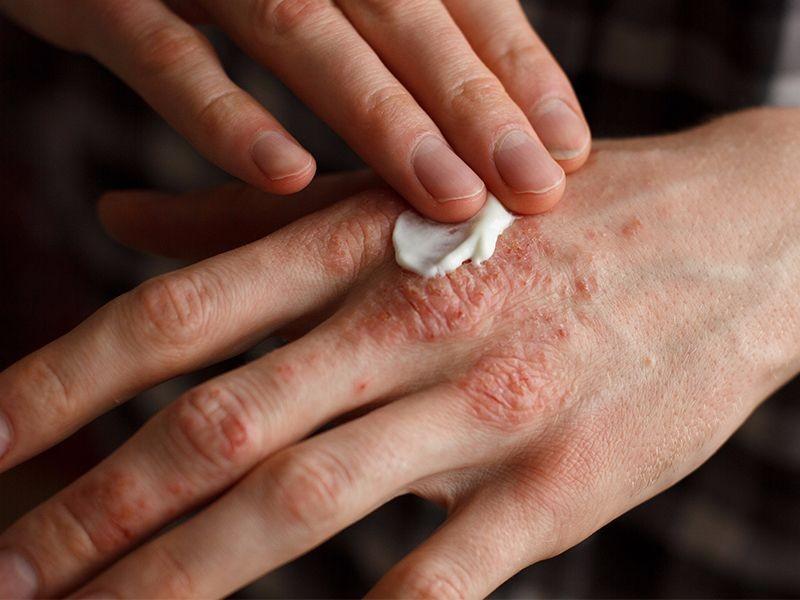 نمط الحياة والعلاجات المنزلية التهاب الجلد التأنبى