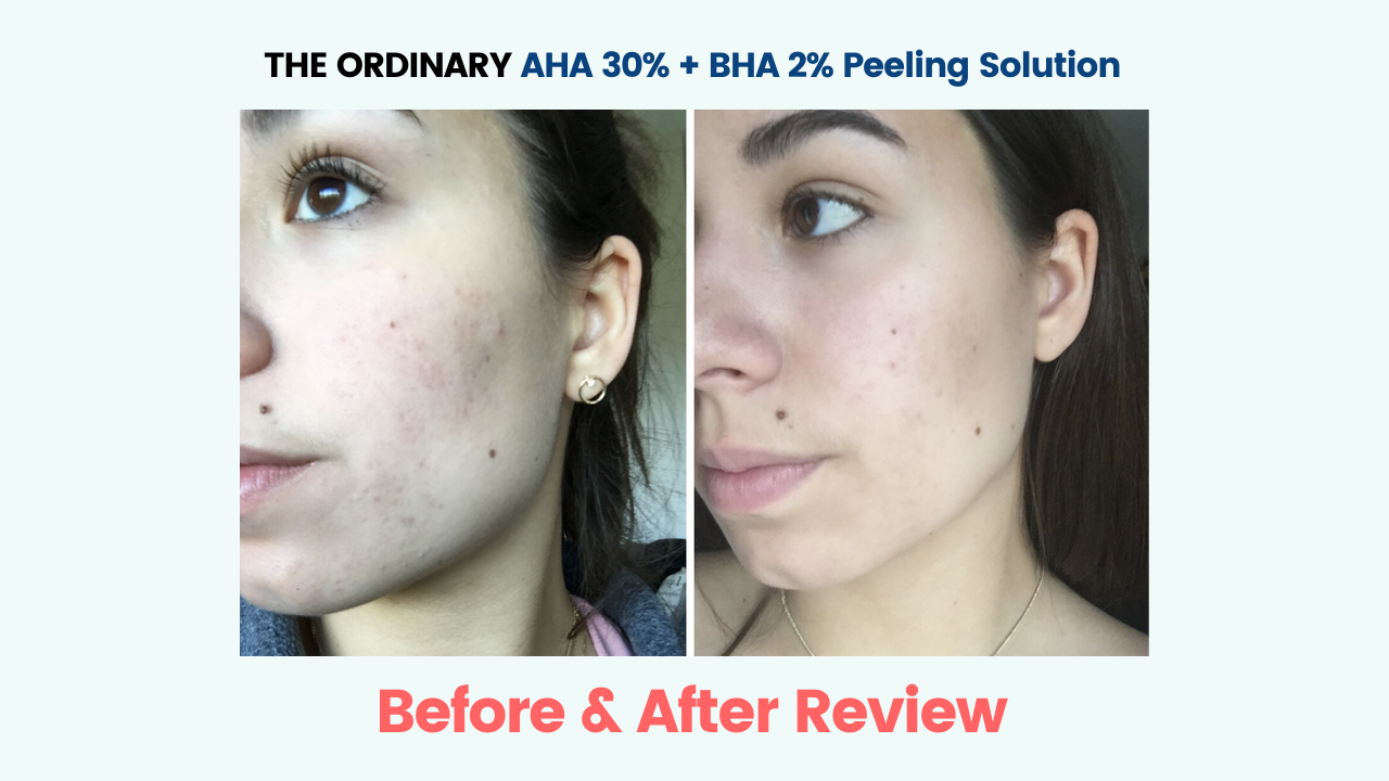 The Ordinary Aha Bha Peeling Solution Before And After Seknd Blog