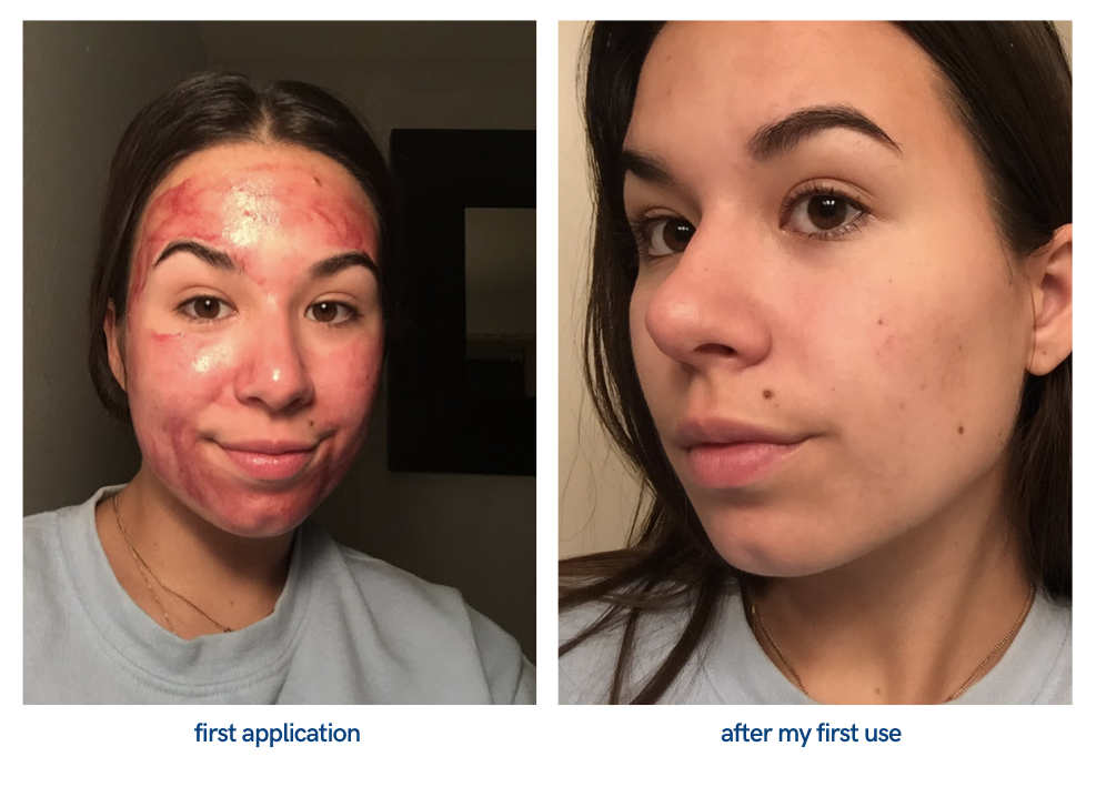 picture of face after first application of peeling solution