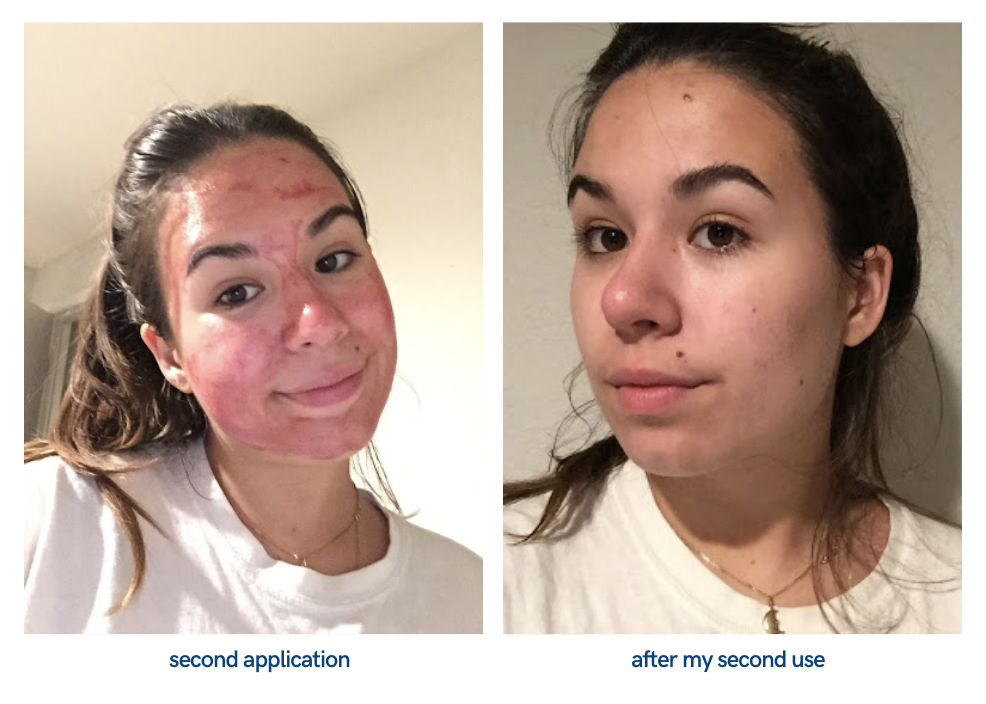 picture of face after second application of peeling solution
