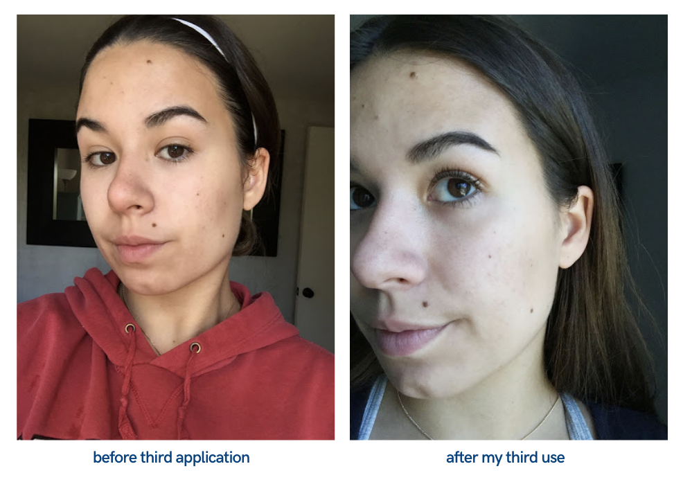 picture of face after third application of peeling solution