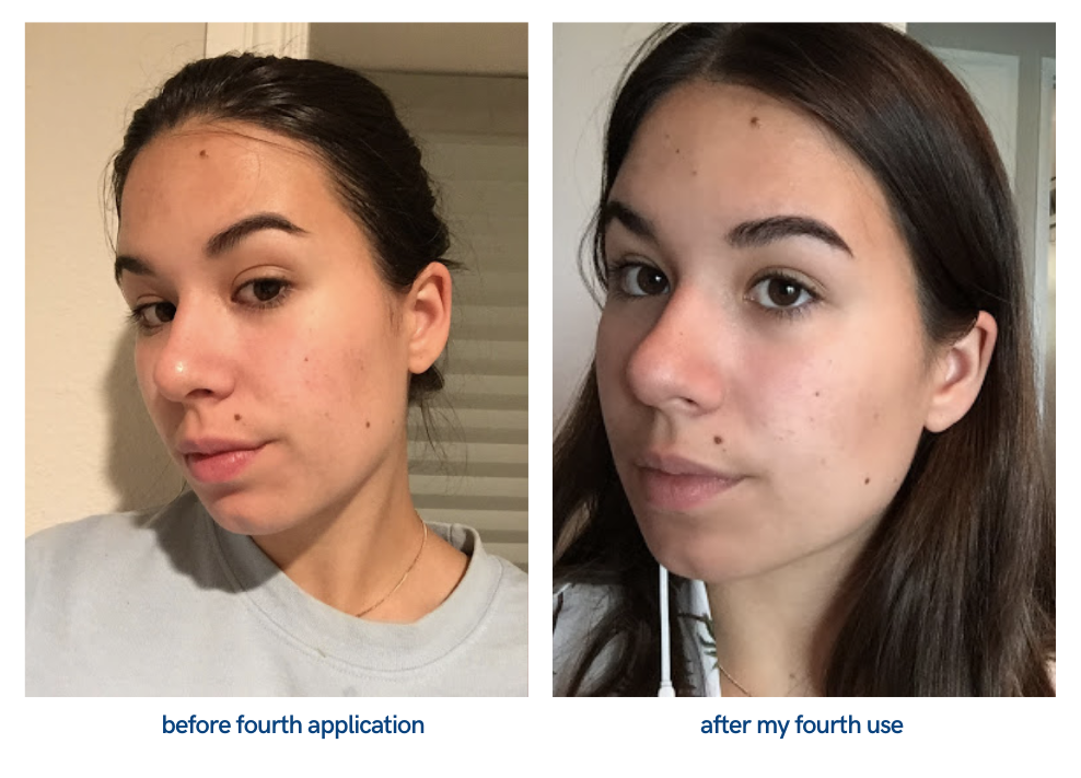 picture of face after fourth application of product