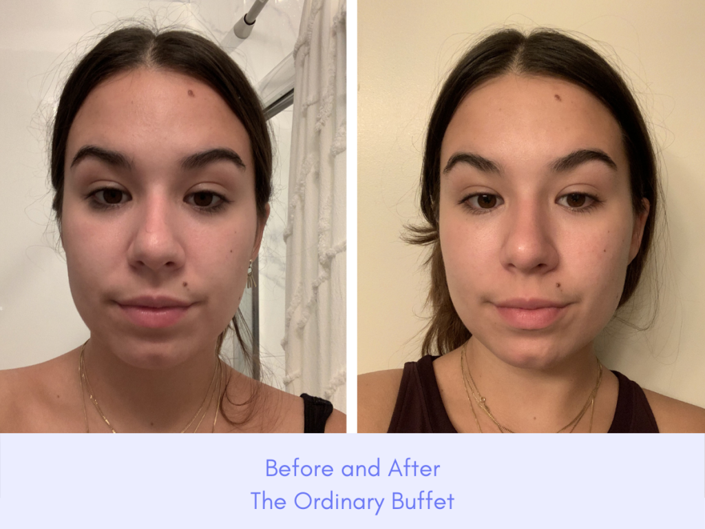 the ordinary buffet serum before and after