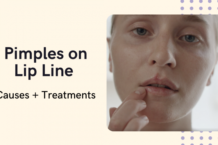 how to treat pimples on lip line
