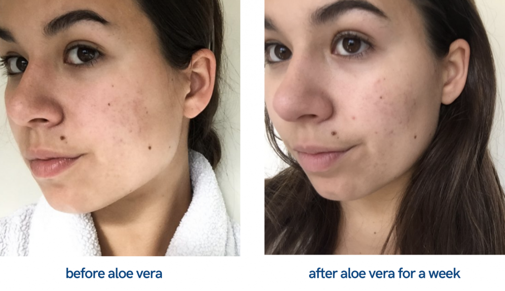 Aloe vera on face Before and After picture