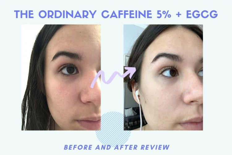 the ordinary caffeine solution before and after