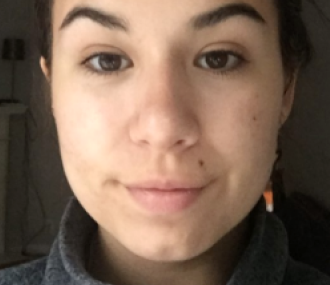 Drunk Elephant T.L.C. Glycolic Night Serum: Before and After
