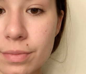 The Ordinary Buffet Serum: Before and After
