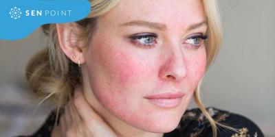 5 dấu hiệu kêu cứu của làn da chứng tỏ bạn đã skincare sai cách rồi đấy