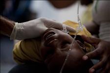 Salud Pública confirma 59 casos de cólera en el país