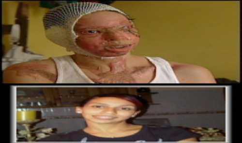 Dos jóvenes sufren serias lesiones al echarles ácido de diablo
