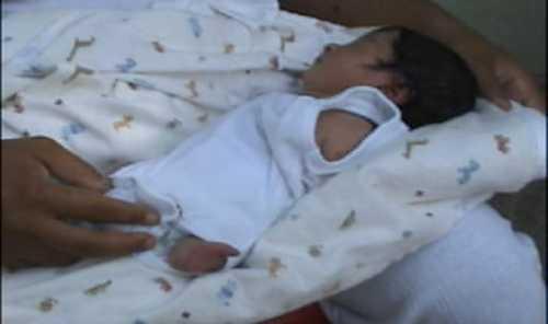 Nace niña sin brazos ni piernas en Azua
