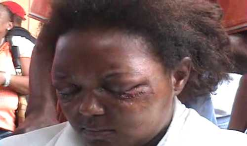 Haitiano viola e intenta sacarles ojos a mujer en Santiago