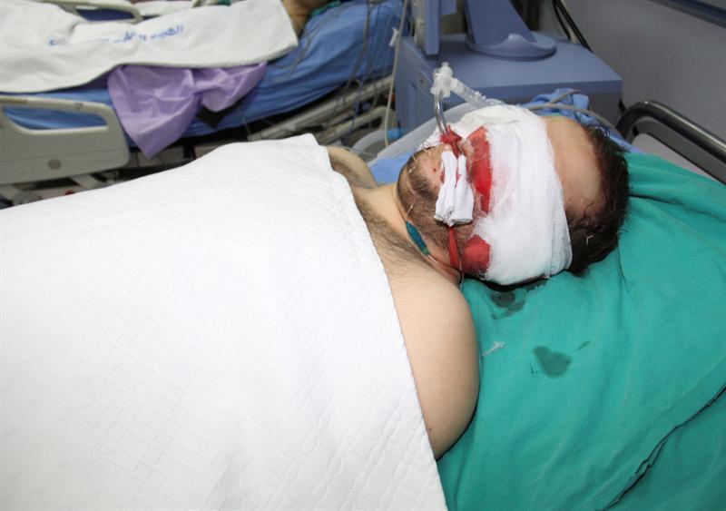Al menos 21 muertos hoy por la represión de las fuerzas del régimen en Siria