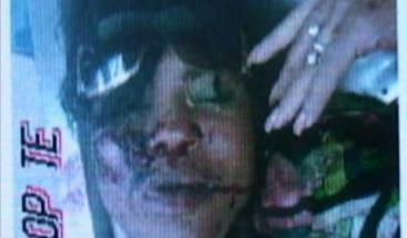 Hombre mata a su pareja  a tiros y luego le pasa vehículo por encima