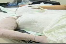 En cuidados intensivos se encuentra mujer quemada con agua caliente en Santiago