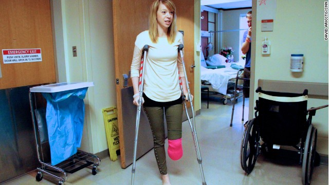 Bombas en Boston destruyen el pie de una bailarina pero no su espíritu