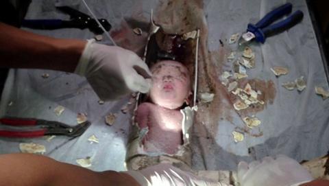 China: caída de bebé a una cañería fue