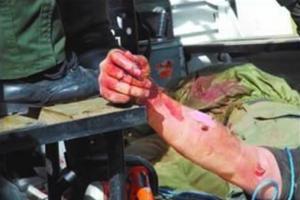 Linchan dominicano en Venezuela tras matar 3 mujeres