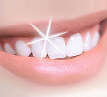 Conoce 5 trucos para blanquear tus dientes de forma natural