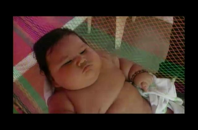 Bebé más obeso de Colombia recibe ayuda por parte de fundación
