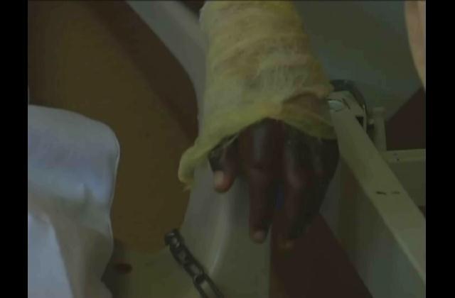 Padre que quemó las manos de su hijo enfrenta a la justicia
