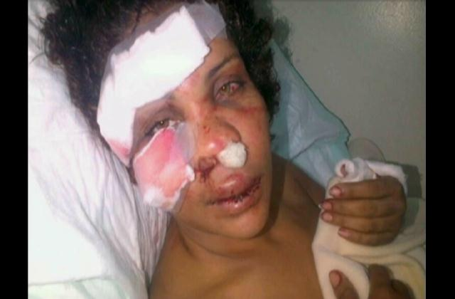 Mujer brutalmente herida por su pareja dice no se querellará