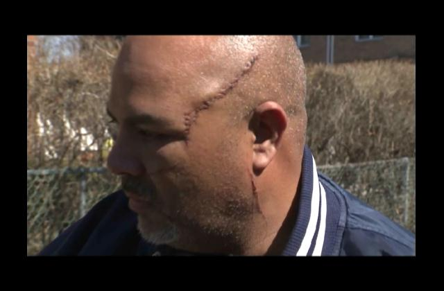 Agreden brutalmente taxista dominicano en NY