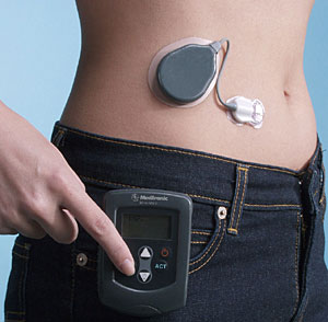 Un páncreas artificial, elegido mejor invento del año en el Reino Unido