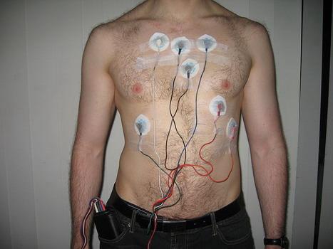 Monitor cardiaco insertado vigila la regularidad del pulso