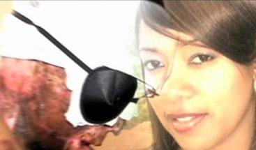 Narra testimonio mujer marcada de por vida con ácido del diablo; su agresor aún la amenaza