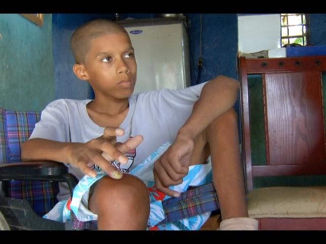 Adolescente sufre enfermedad que ha obligado a mutilarle sus piernas