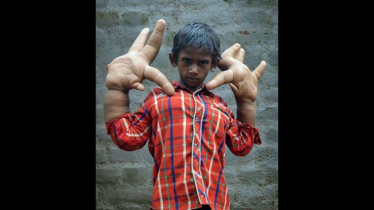"""Conozca la vida difícil de un niño con """"manos gigantes"""""""
