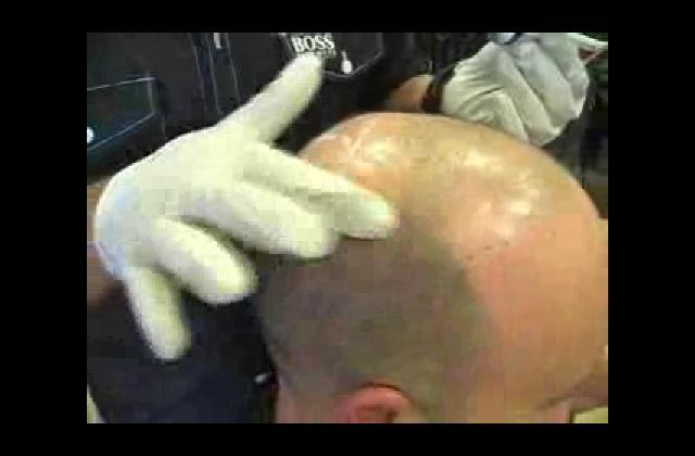 Hallan prometedor tratamiento para la calvicie