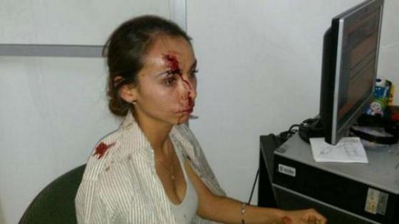 """""""No voy a dejar el periodismo"""", dice mujer agredida por tres hombres"""