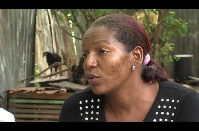 Madre de cuatro hijos pide ayuda para tratar enfermedad que les afecta